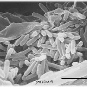 Το βακτηρίδιο της Xylella fastidiosa - Ν. Λυγερός